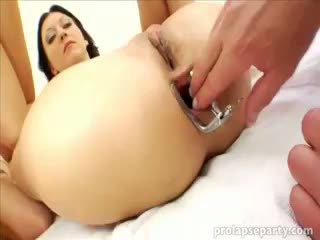 Anál prolapsing na the gynecologist